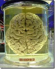 474px-Human_brain