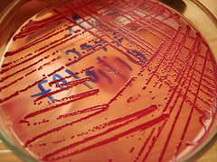 Image of E Coli in the lab