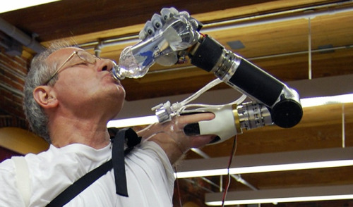 The 'Luke' bionic arm